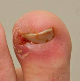This ingrown toe nail requires treatment by a podiatrist