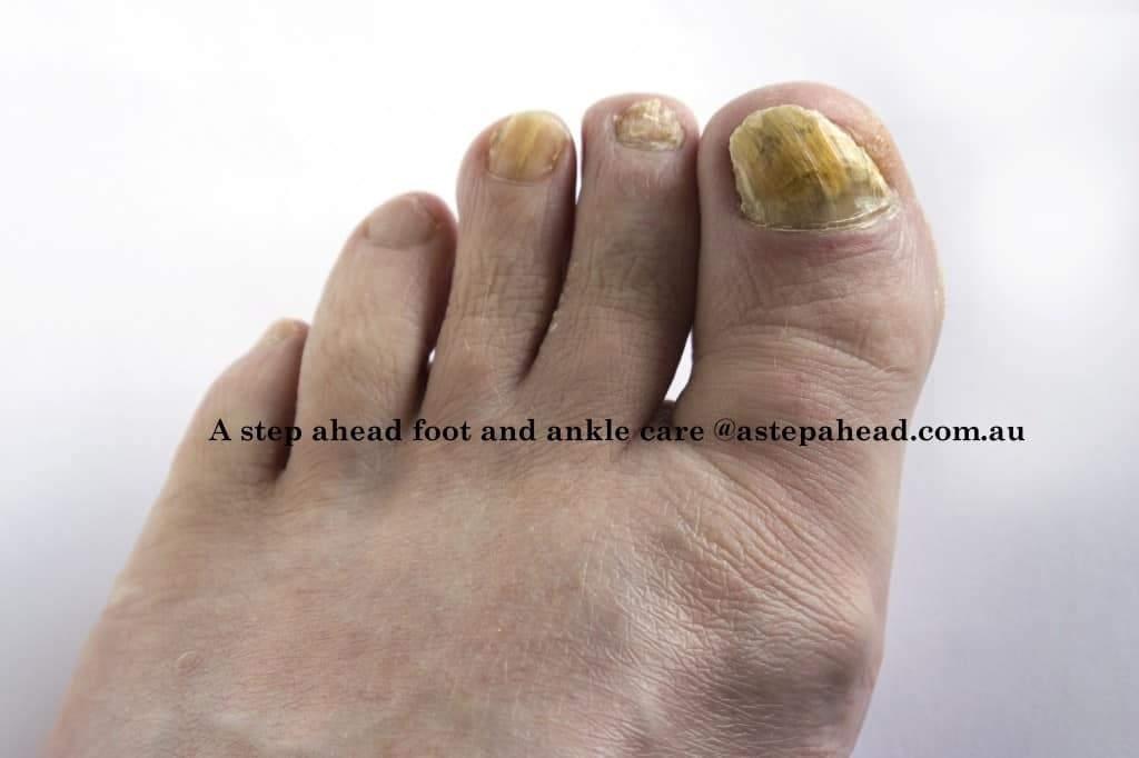 Fungal toe nails