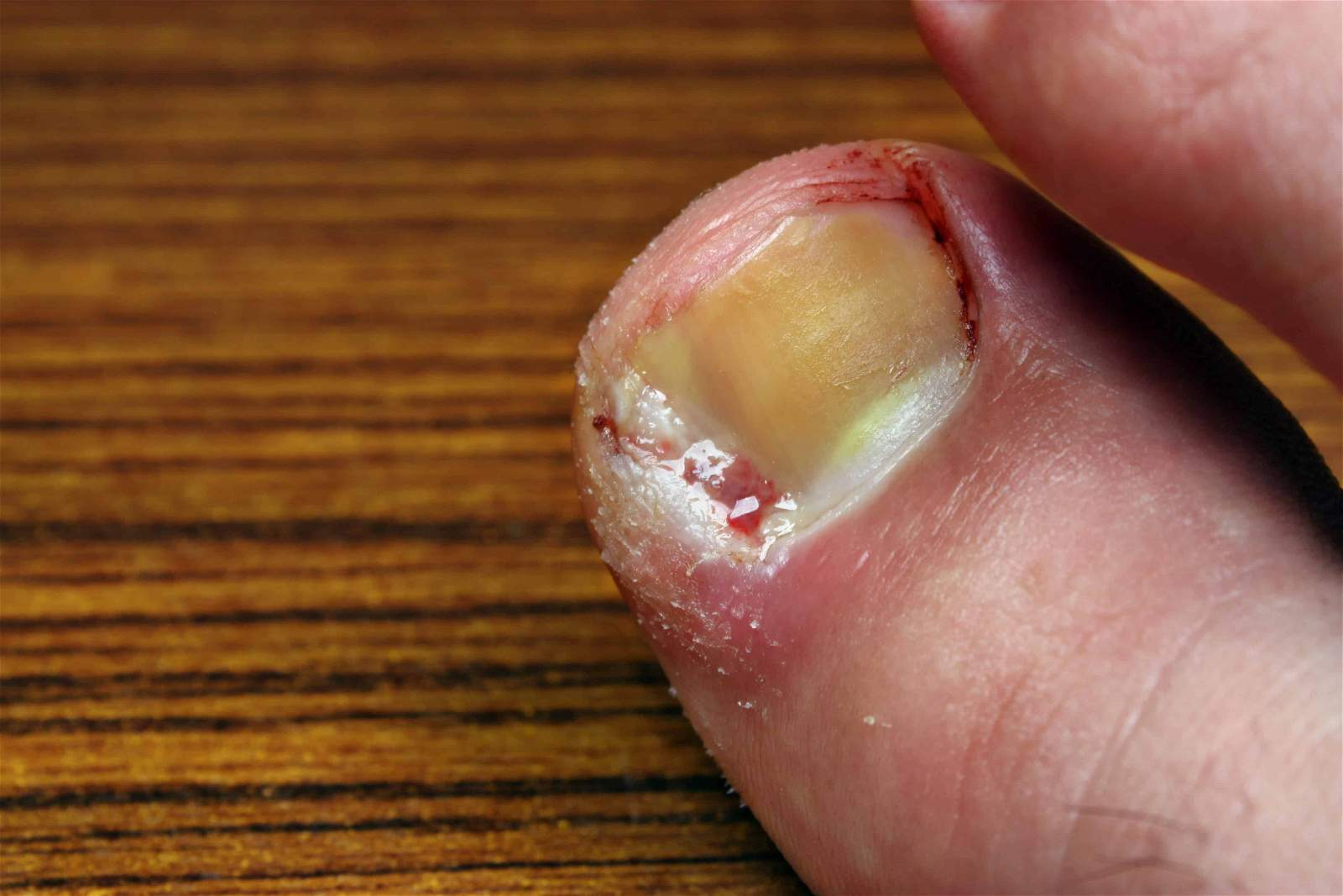 Ingrown toenails do I need surgery?
