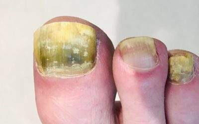 Fungal Nail Infection – 6 Top Questions Answered
