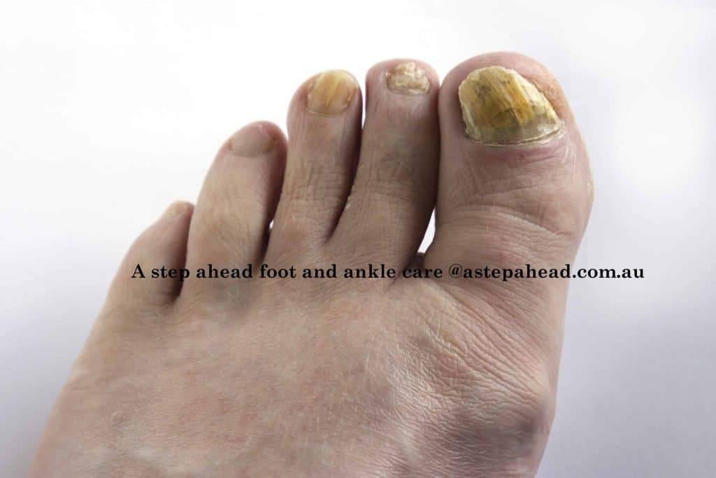 Fungal toenails GONE FAST! - 1