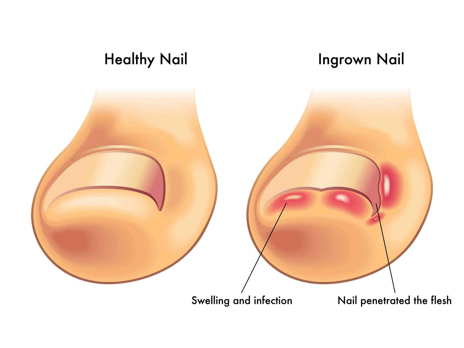 Ingrown Toenail-YOU HAVE AN INGROWN TOENAIL