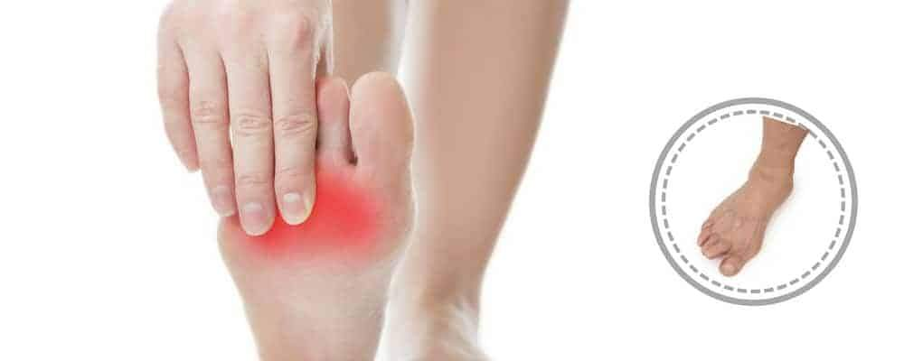 Is All Heel Pain Plantar Fasciitis?